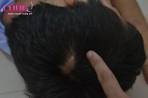 cay-toc-tren-seo-co-duoc-khong-1