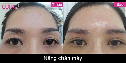 nang-chan-may-tham-my-dem-lai-su-tre-trung-cho-guong-mat-1
