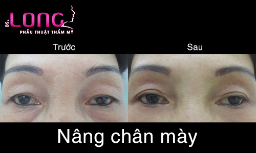dia-chi-nang-chan-may-uy-tin-tai-tphcm-1