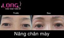 dia-chi-nang-chan-may-uy-tin-tai-tphcm