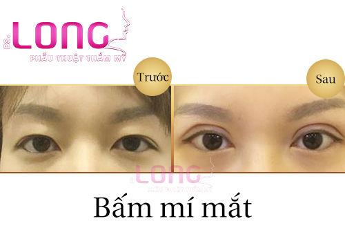 tao-mat-2-mi-khong-phau-thuat-co-tot-khong-1