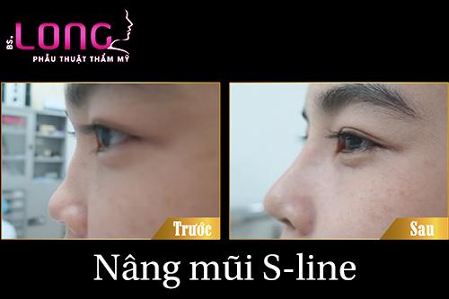 nang-mui-sline-nhu-the-nao-la-dep-1