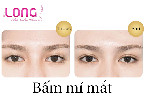 bam-mat-2-mi-xong-sung-trong-thoi-gian-bao-lau-1