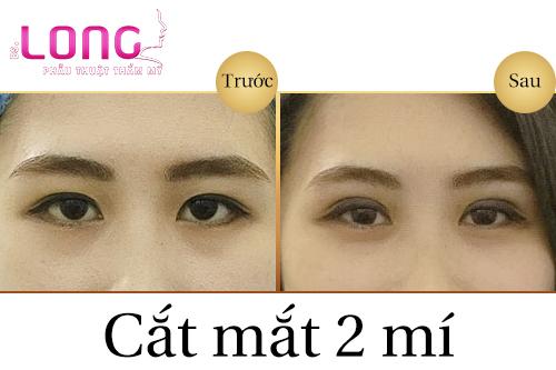 mi-mat-bi-sup-co-cat-mi-mat-tao-mat-2-mi-duoc-khong-1
