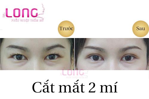 phau-thuat-cat-mat-2-mi-bao-lau-thi-lanh