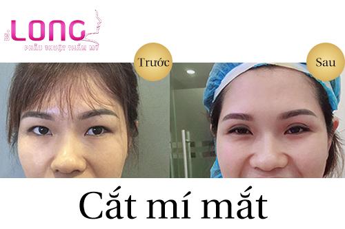 chi-tiet-ve-phuong-phap-cat-mat-2-mi-1