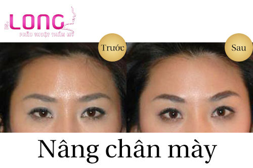 nang-chan-may-co-xoa-nep-nhan-duoc-khong-2