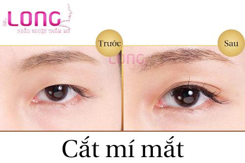 phau-thuat-cat-mat-2-mi-co-sung-bam-khong-2