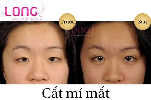 dia-chi-cat-mi-mat-vinh-vien-uy-tin-tai-sai-gon-1