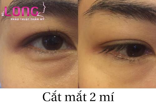 bi-bong-mo-mat-co-cat-mi-mat-duoc-khong-1
