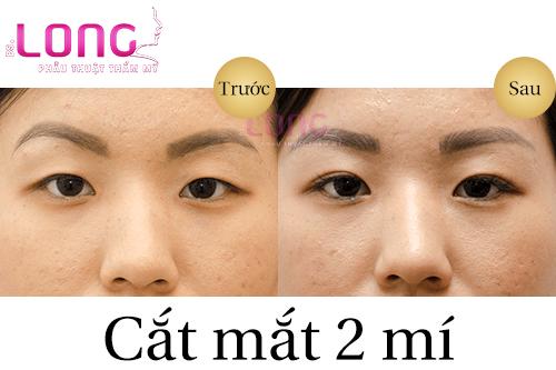 cat-mat-2-mi-co-anh-huong-gi-khong-1