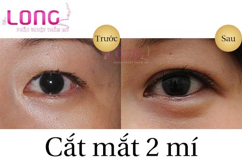 tieu-chuan-khi-cat-mat-2-mi-tai-cac-tham-my-vien-2