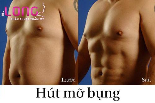 tieu-chi-lua-chon-dia-chi-hut-mo-bung-cho-nam-1