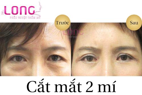 dau-mat-hot-co-cat-mat-2-mi-duoc-khong-1