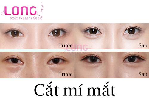 cat-mi-mat-hong-thi-phai-lam-sao-1