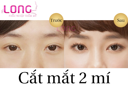 cat-mat-2-mi-co-tao-mat-2-mi-to-duoc-khong-1