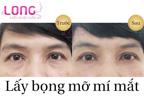 lay-bong-mo-mi-mat-duoi-co-de-lai-seo-khong-1