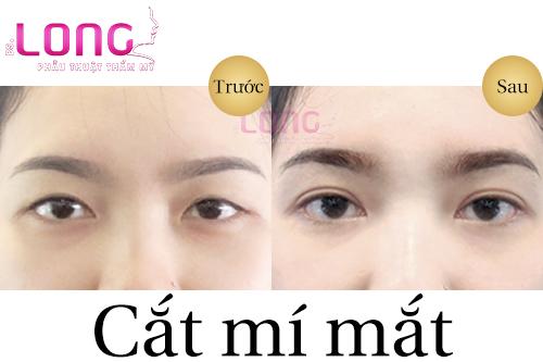 cat-mat-2-mi-nhu-the-nao-de-khong-bi-sung-bam-1