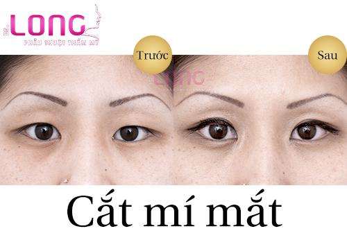 mat-bi-xech-co-cat-mi-mat-duoc-khong-1