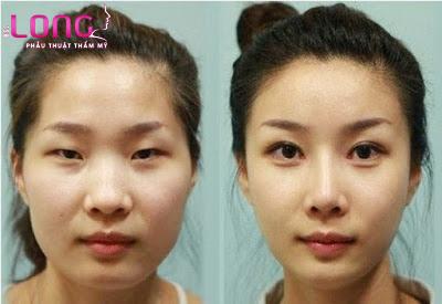 cat-mat-2-mi-xong-co-sung-khong-1