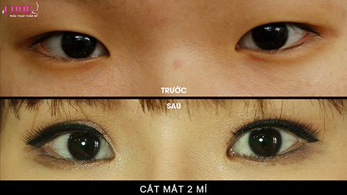 mat-2-mi-khong-deu-co-sua-lai-duoc-khong-1
