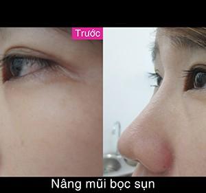 nang-mui-boc-sun-co-giu-duoc-vinh-vien-khong