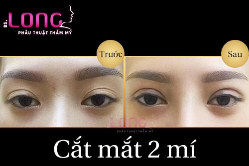 cat-mat-xong-nen-kieng-an-gi-de-khong-co-seo
