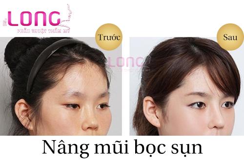 nang-mui-boc-sun-tu-than-co-ton-nhieu-tien-khong-1