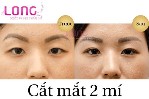 cham-soc-sau-cat-mat-2-mi-dung-cach-1