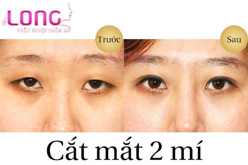cat-mat-2-mi-sua-lai-o-dau-dep-1