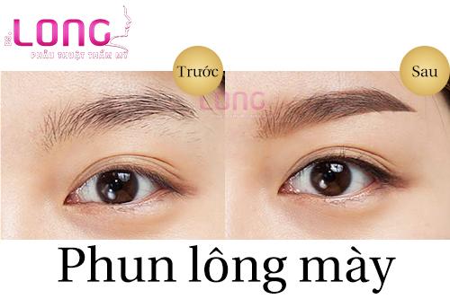 tham-my-phun-long-may-co-dau-khong-1