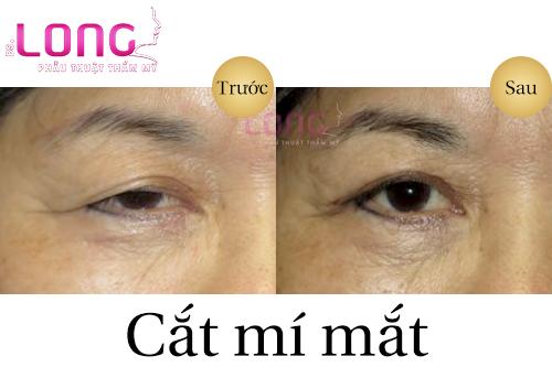 dia-chi-cat-mat-uy-tin-vinh-vien-tai-tphcm-1
