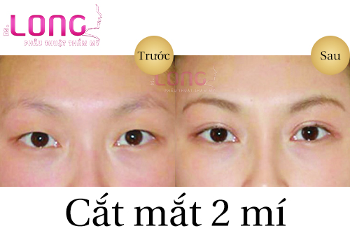 nhung-bien-chung-thuong-gap-sau-cat-mat-2-mi-1