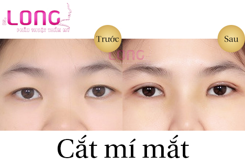 cat-mat-2-mi-xong-an-gi-nhanh-lanh-1