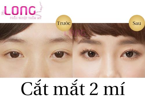cat-mat-2-mi-co-tao-mat-2-mi-to-duoc-khong-1