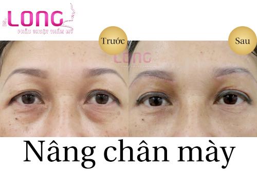 nang-chan-may-co-khac-phuc-duoc-sup-mi-mat-khong-1