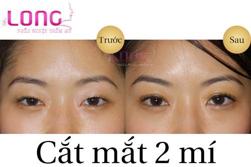 phau-thuat-cat-mat-2-mi-co-sung-bam-khong-1