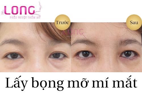 cach-lay-bong-mo-mi-mat-nhanh-chong-bang-tham-my-1
