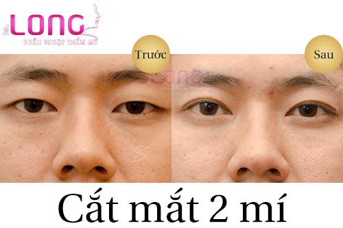 cat-mat-2-mi-lay-bong-mo-mat-la-gi-1