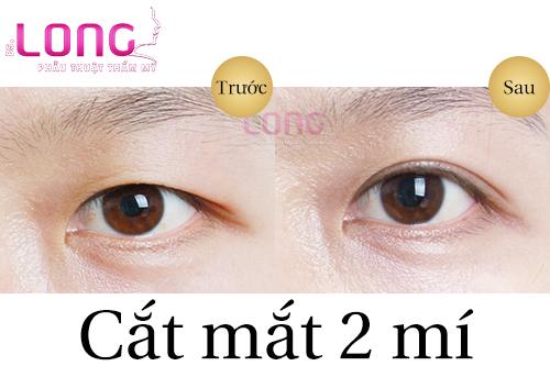 do-tuoi-nao-phu-hop-de-cat-mat-2-mi-1