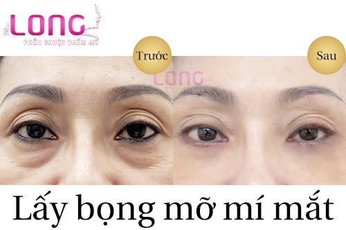 gia-lay-bong-mo-mat-bao-nhieu-tien-1